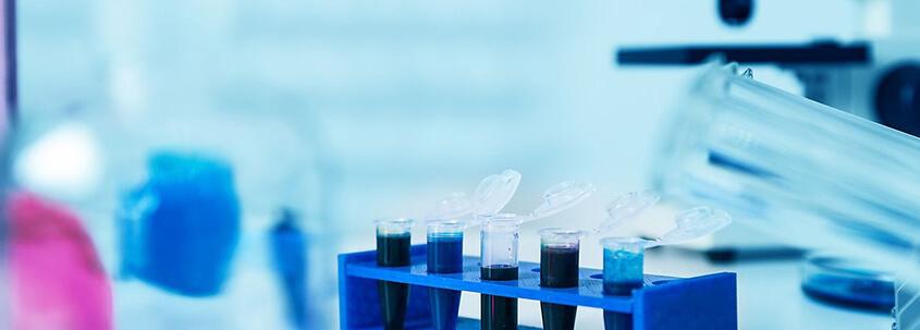 Bazofil Aktivasyon Testi
