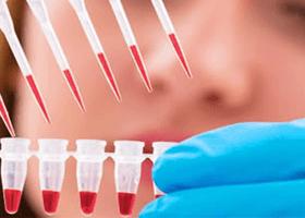 Bazofil Aktivasyon Testi Kimlere Yapılır